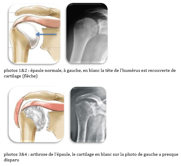 arthrose1