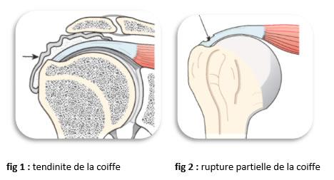 lesionepaule2